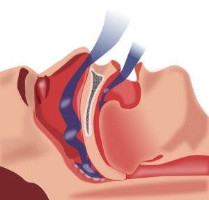 Sleep Apnea Treatment in Concord NC