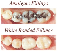 dental Fillings South Concord SC