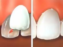 South Concord NC Dental Veneers