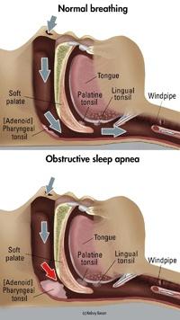 Sleep Apnea Treatment South Concord SC