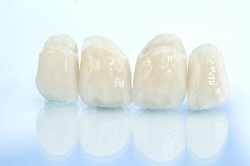 Are Dental Crowns Right For You?