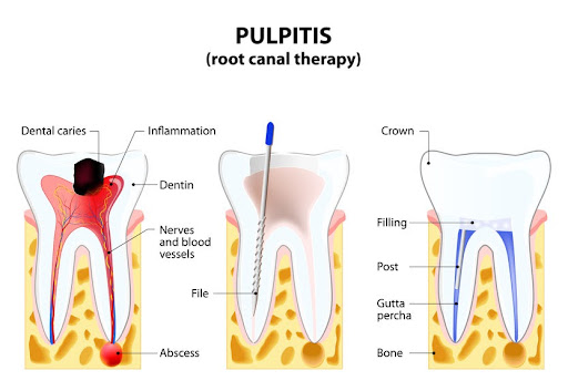 Root Canal Procedure Aftercare